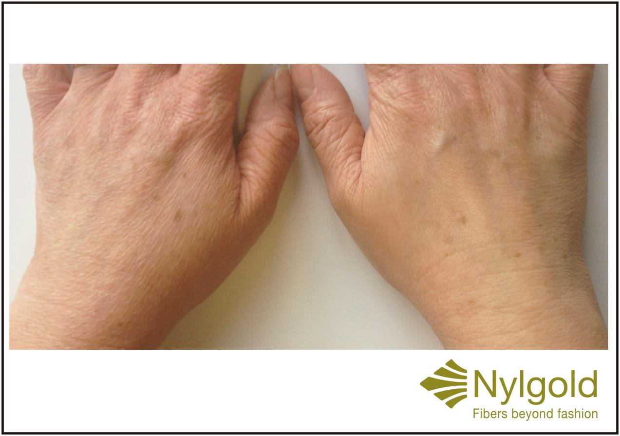 In contrast to ordinary cosmetics, Nylstar says, Nylgold acts directly on the skin cells, stimulating its own Hyaluronic Acid production and achieving moisturizing, firming and anti-oxidant properties that can vary depending on the fabric construction and composition.