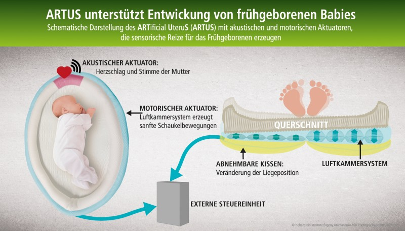 Diagram showing how the artificial uterus ARTUS works. The new product won the Techtextil Innovation Award in the New Application category in 2015. © Hohenstein Group